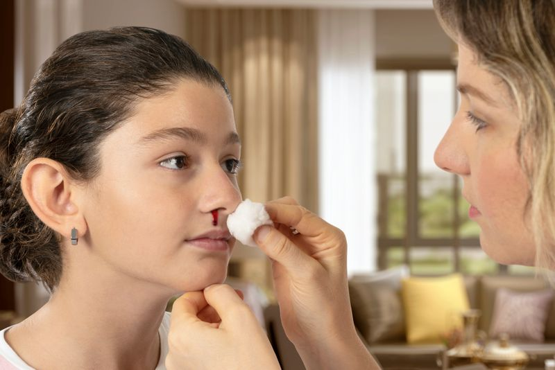 Es ist oft ein Schreckmoment: Plötzlich rinnt das Blut aus der Nase! Doch kein Grund zur Panik, oft hat Nasenbluten völlig harmlose Ursachen - etwa kräftiges Nase putzen oder ein kleiner Schnupfen. So oder so: Einfach aufrecht hinsetzen und den Kopf nach vorne beugen - das hilft sofort!