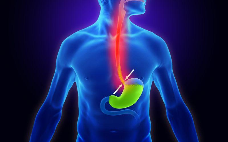 Normalerweise sorgt der Schließmuskel am unteren Ende der Speiseröhre dafür, dass die Magensäure nicht nach oben vordringt und Sodbrennen verursacht. Diese Verschlussfunktion kann jedoch aus verschiedenen Gründen eingeschränkt sein, sodass ein sogenannter Rückfluss (Lateinisch: Reflux) möglich ist. Auch ein zu voller Magen oder eine Überproduktion von Magensäure können zu Sodbrennen führen.